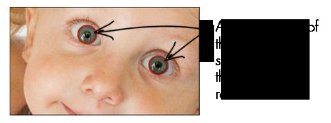 dst-eye-contrast-img4